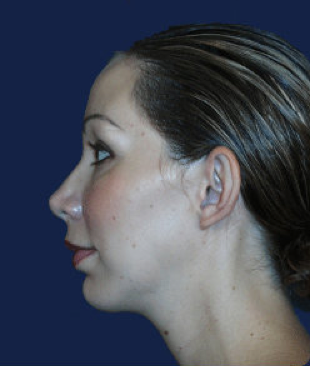 chin implant after 476634