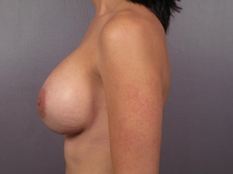 Breast Revision Surgery  after 307421