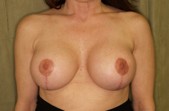 Breast augmentation with breast lift after 391344