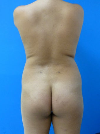 Buttock Augmentation - Fat Transfer before 315864