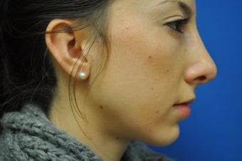 Chin Augmentation with Rhinoplasty after 582528