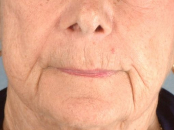 Radiesse/Juvederm before 100315