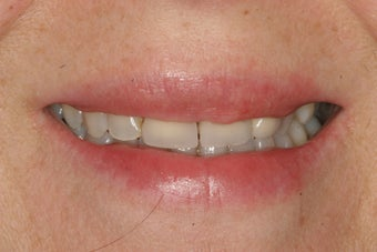 Temporary Veneers before 421768