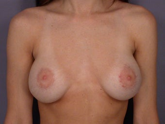 Breast Revision before 307220