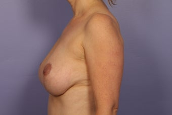 Breast Lift after 311078