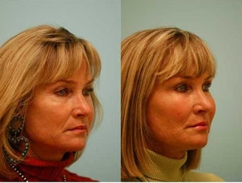 Fat Transfer/Fat Grafting/Facial Rejuvenation before 136337