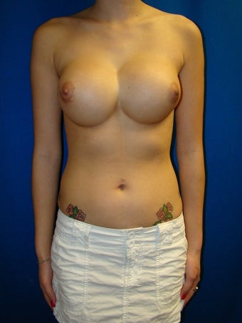 Breast Augmentation Revision before 78895