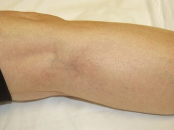 Laser vein removal on legs after 167722