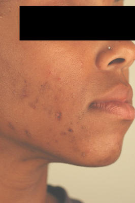Laser Acne Treatment before 82952