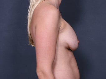 Breast Implant Revision 461868