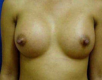 Breast Augmentation  after 317789