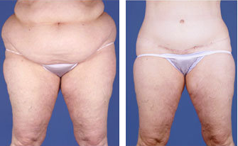 Central body lift with liposuction age 53 before 6817