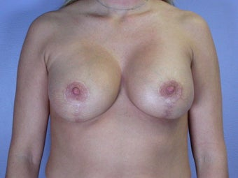 Breast Lift / Breast Augmentation  after 290962