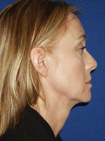 Cheeklift (Minifacelift), Bilateral Upper Blepharoplasty, Periorbital TCA Chemical Peel, Soft Tissue Filler to Nasolabial Folds before 249153