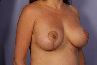 Breast Lift / Breast Augmentation   after 291145