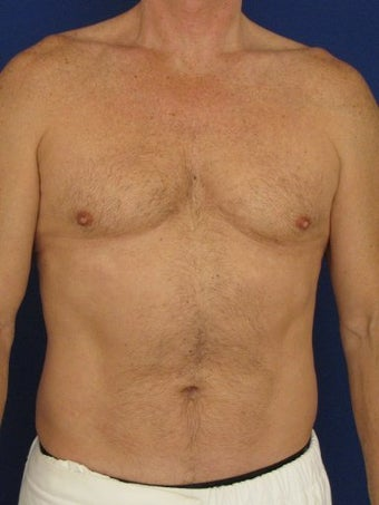 Vaser Hi Def Liposuction of chest, abdomen, back and flanks before 422687