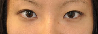 Double Eyelid Surgery - Full Incision after 307223