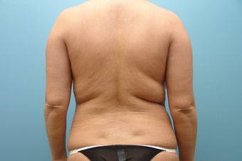 Smartlipo to Full Back before 426366