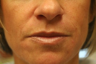 Radiesse and Restylane to the nasolabial folds after 240188