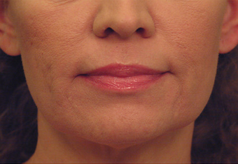 Yag Laser Skin Tightening  after 622085