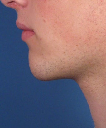 Chin Implant after 414150