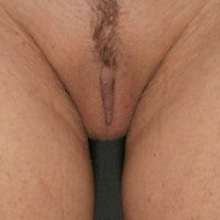 Labiaplasty  after 571799