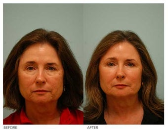 Fat Transfer/Fat Grafting/Facial Rejuvenation before 136352