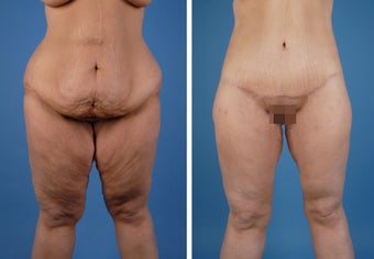 Lower Body Lift and Thighplasty before 335986