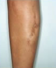 Scar revision of leg before 316562