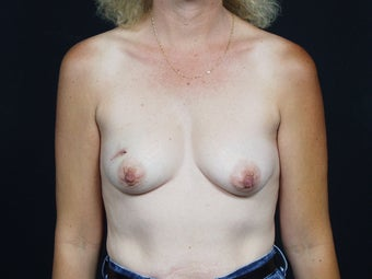 42 Year Old Female for Breast Reconstruction before 643238