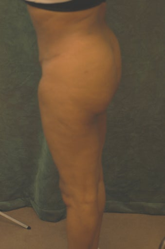 Women's Buttocks Augmentation  before 518126