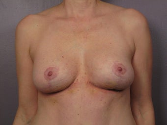 Breast Revision after 307215