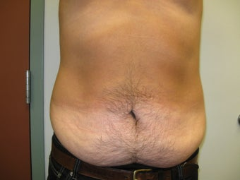 Abdominoplasty on 42 Year Old Male before 340025