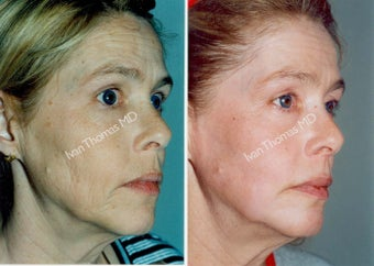 Non-Surgical Face Lift- Exoderm  before 242985