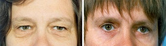 Blepharoplasty before 643235