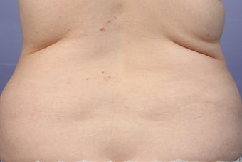 CoolSculpting to Bra Rolls/Back Fat before 414959