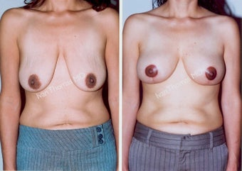 Mastopexy-Breast Lift before 243707