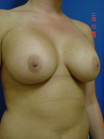 Breast Augmentation 347972