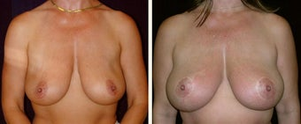 42 year old female, breast reduction before 630941