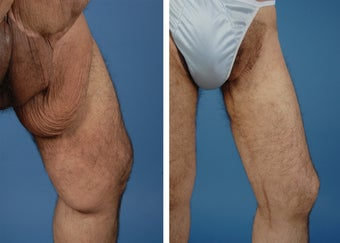 Thighplasty before 335981