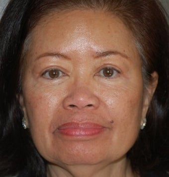 Upper Lid Blepharoplasty & NS Cheek Enhancement (Radiesse) after 104590