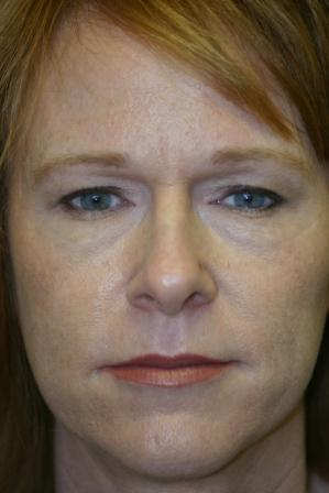 Brow Lift with Upper and Lower Blepharoplasty before 551156