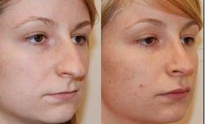 Rhinoplasty and Lip Augmentation with Silikon-1000 before 153622