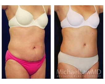 Tummy Tuck with Liposuction after 391605