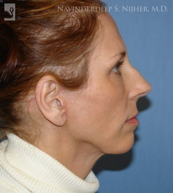 Chin Implant after 502574
