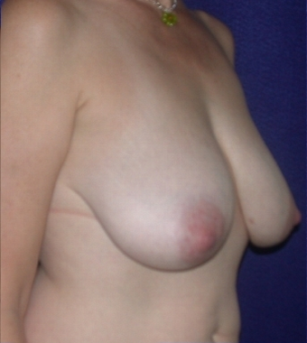 Breast Reduction before 213157