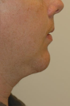 Chin augmentation, neck liposuction, and neck muscle tightening after 277313