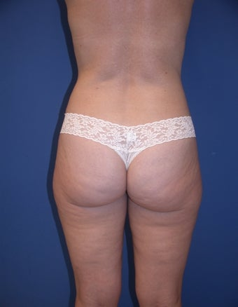 Before & After Liposculpture of the buttocks, thighs & hips before 48606