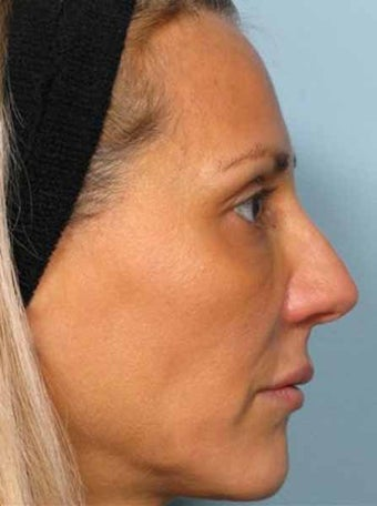 BOTOX combined with Radiesse after 349880