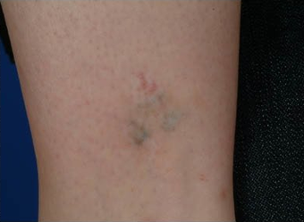 QSR Ruby Laser Tattoo Removal after 329685